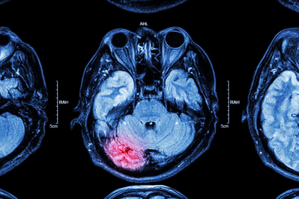 MRI of brain : brain injury